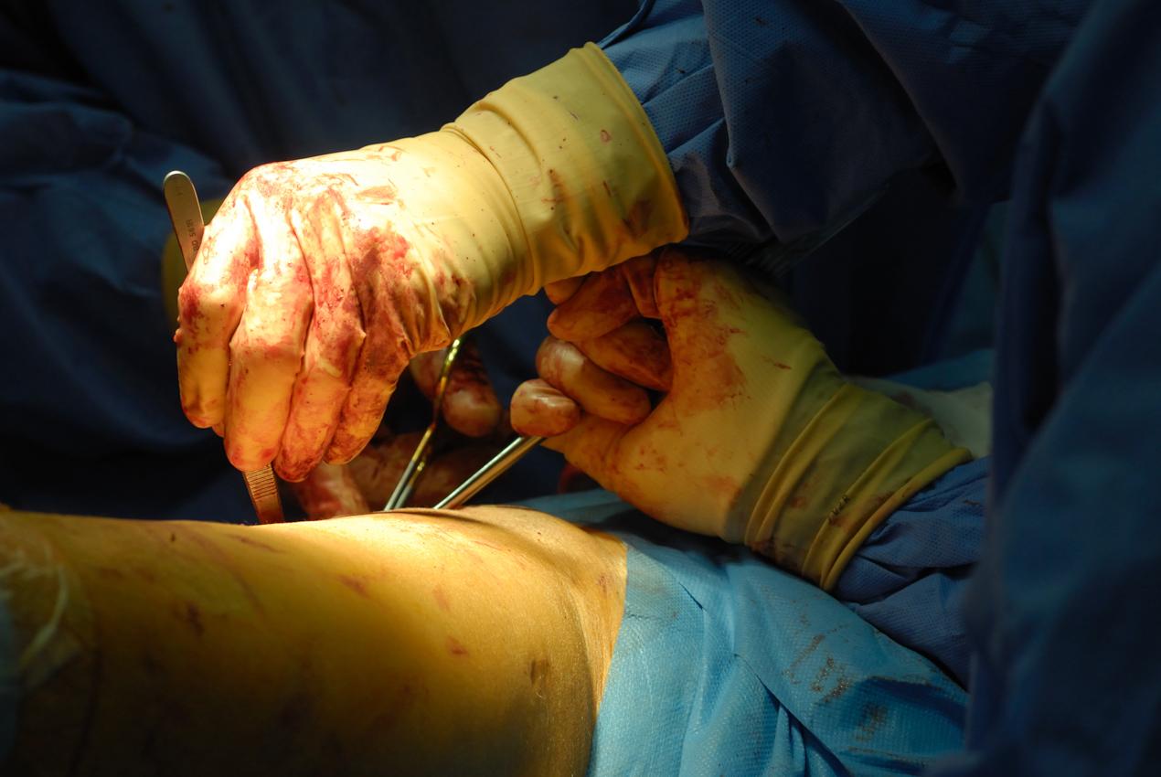 Hüftoperation im Operationssaal der Klinik für Orthopädie. Der Chirurg entfernt ein Hüftgelenk vor dem Einsetzen der neuen Hüftendoprothese.